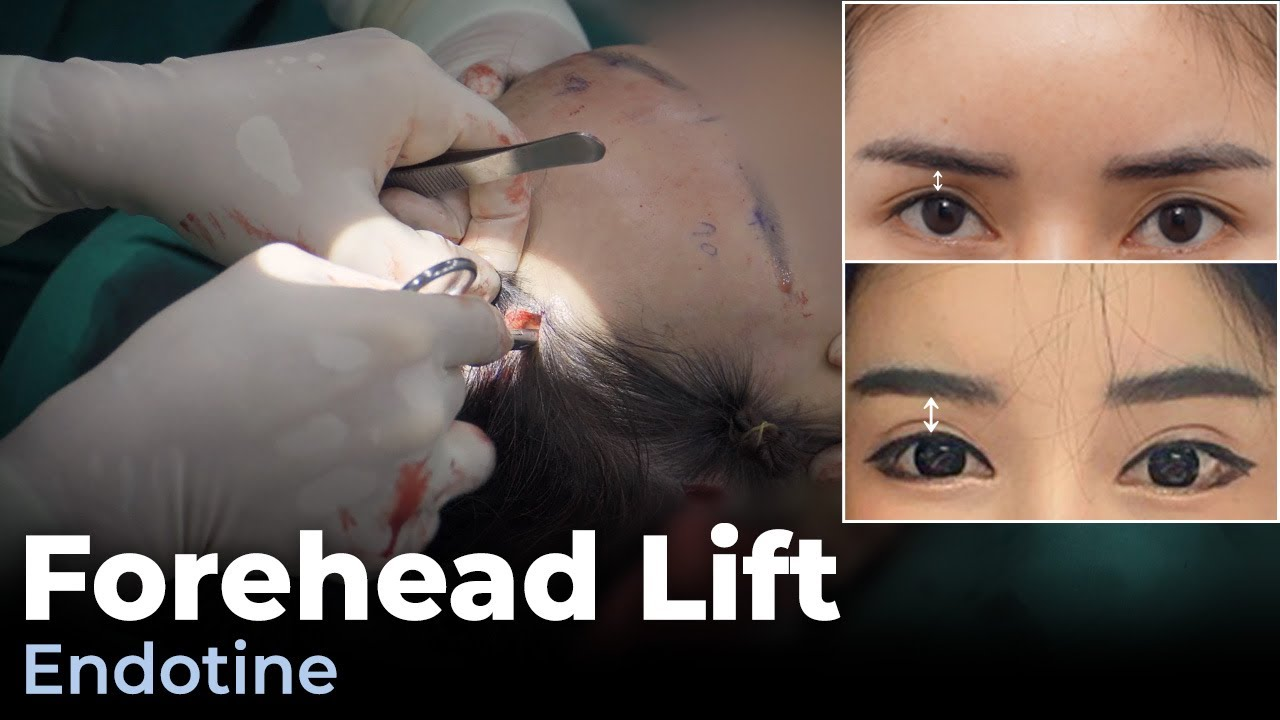 Forehead Lift What You Need To Know