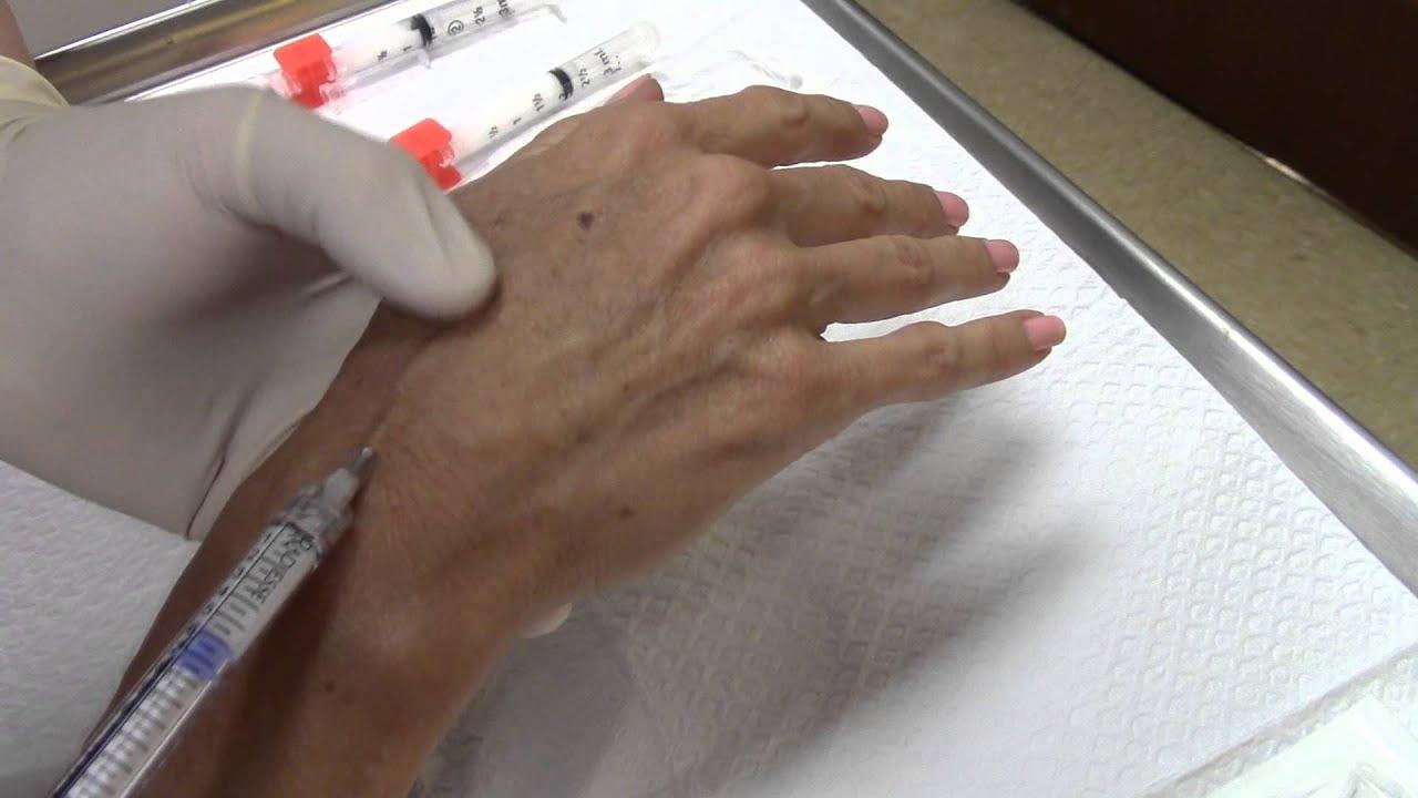 Radiesse (Calcium Hydroxylapatite) Hands / Hand Rejuvenation With Fillers /  Dorsal Hand Volumization