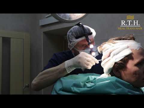 STRIP метод пересадки волос в RTH