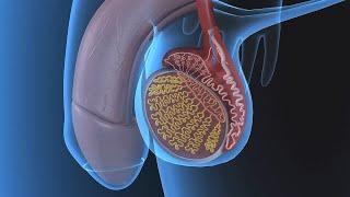 Варикоцеле у мужчин(Варикоцеле у мужчин к сожалению достаточно распространенное заболевание. Варикоцеле яичка внешне определ..., 2015-08-14T05:52:30.000Z)