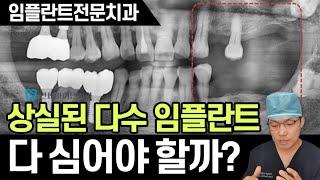한 쪽 어금니는 거의 없고 남아 있는 치아마저 심하게 …