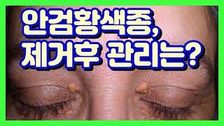 주의사항편 : 안검황색종, 제거 후 관리 방법 . 눈꺼…