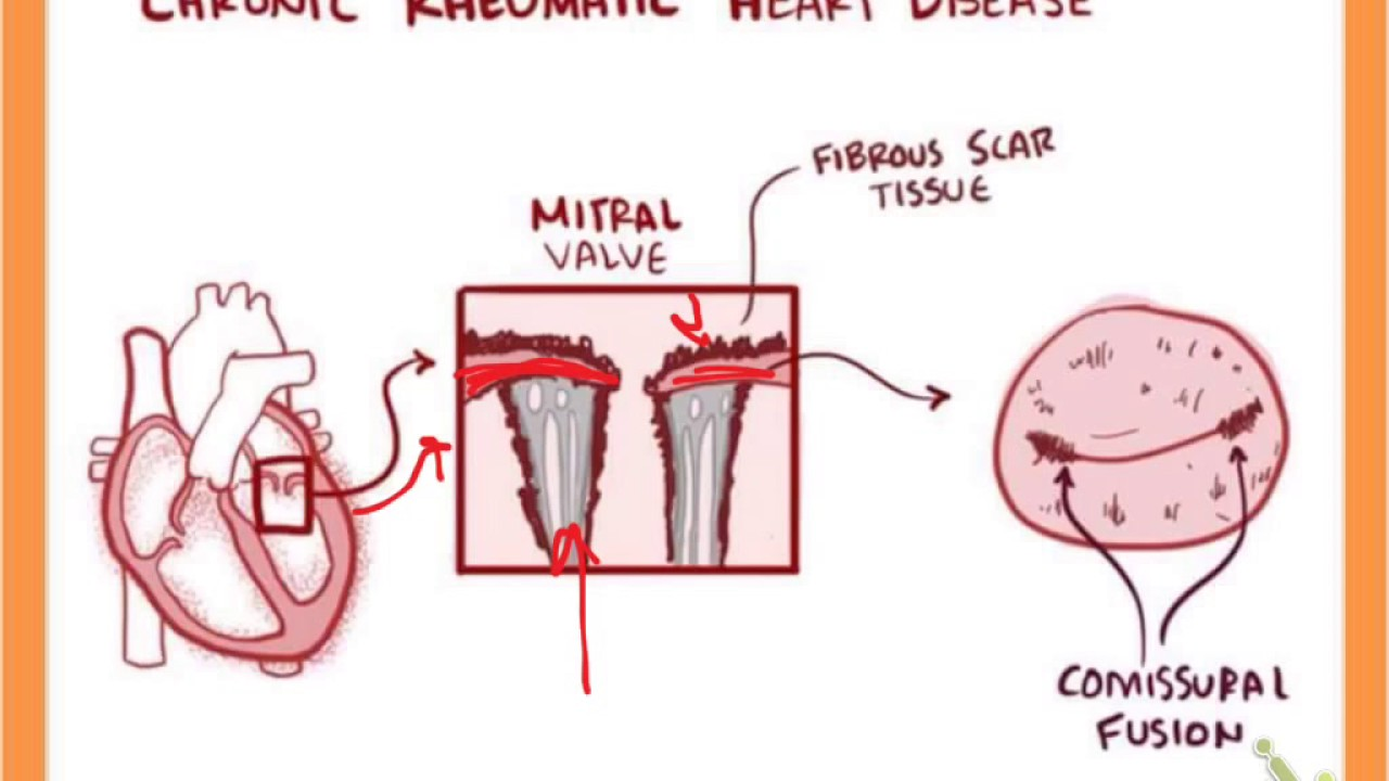 rheumatic heart disease Rheumatic heart disease definition, damage to the heart, especially to the valves, as a result of rheumatic fever, characterized by inflammation of the myocardium or scarring and malfunction of the heart valves see more.