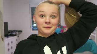 Jojo Siwa's Receding Hairline