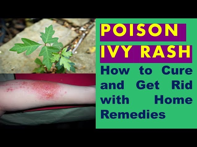 How To Cure And Get Rid Of Poison Ivy Rash Fast With Home Remedies