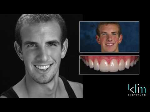 Mastering Anterior CEREC Aesthetic With James Klim DDS, FAGD, AAACD