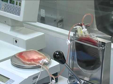 Обработка и хранение пуповинной крови