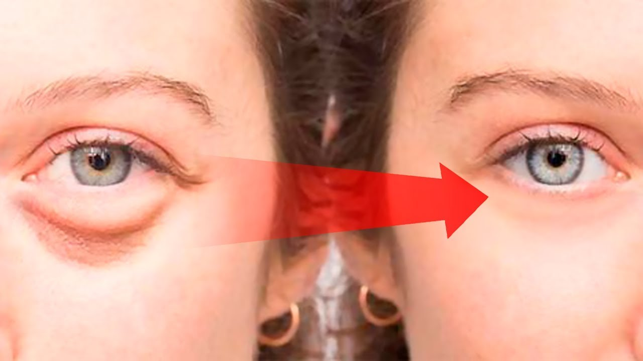 How To Get Rid Of Puffy Eyes Swollen Eyelids Dark Circles