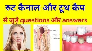Root canal treatment and tooth cap in hindi | questions and answers|#myvj