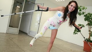 Cheryl Hip Spica plaster cast with Milwaukee support