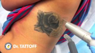 Tattoo Removal Houston Texas - Laser Tattoo Removal Procedure of Rose Tattoo