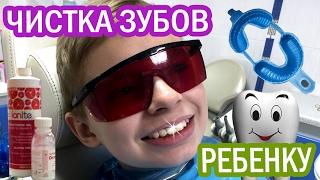 ДО и ПОСЛЕ Профессиональная чистка зубов детям и фторирование | teeth cleaned at the dentist(, 2017-02-03T12:54:31.000Z)