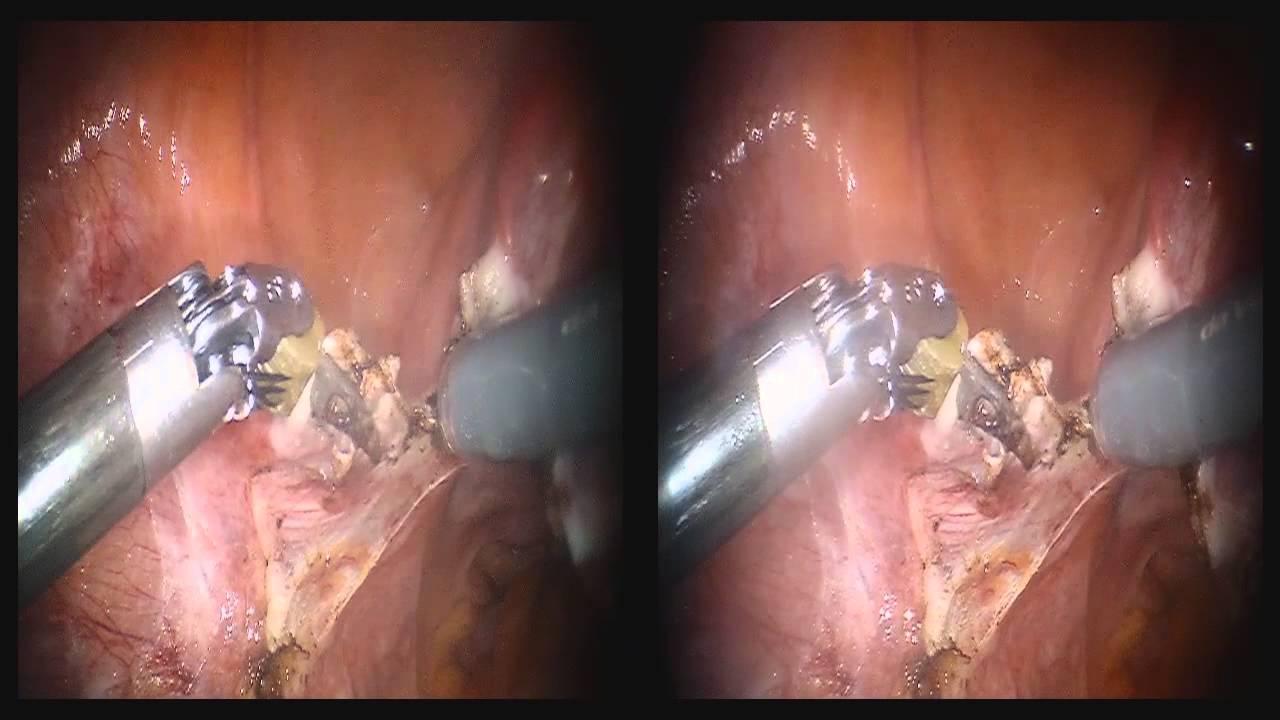 Gebärmutterentfernung wie nach lange bauchschnitt krank Wie lange