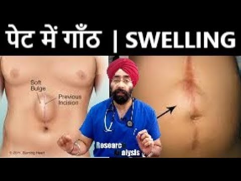 पेट-में-गाँठ-|-lump-in-abdomen-|-swelling-over-stomach-explained-by-dr.education-(hindi)