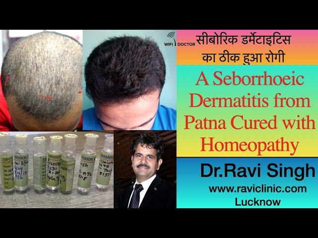 Seborrhoeic Dermatitis Cured by Homeopathy  Dr.Ravi Singh