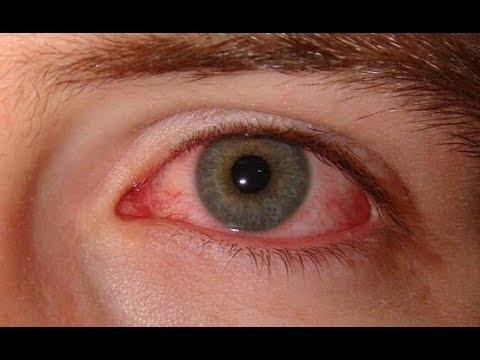Ячмень на глазу не проходит в течение месяца не болит