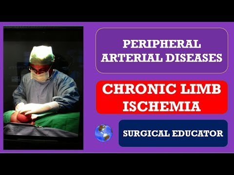 CHRONIC LOWER LIMB ISCHEMIA -  How To DIAGNOSE & TREAT/ Peripheral Arterial Diseases