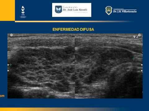 Ecografia tiroiditis de hashimoto
