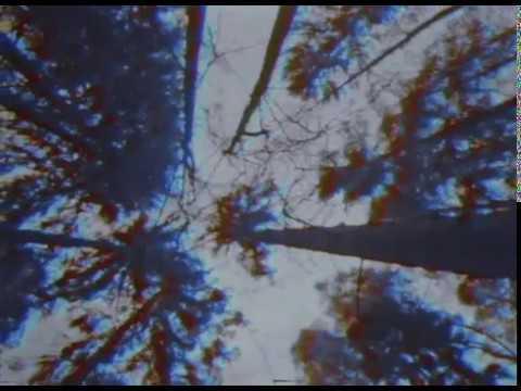ATL - Гори ясно (garçon Kid Remix)