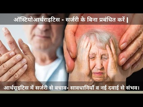 How To Treat Arthritis?