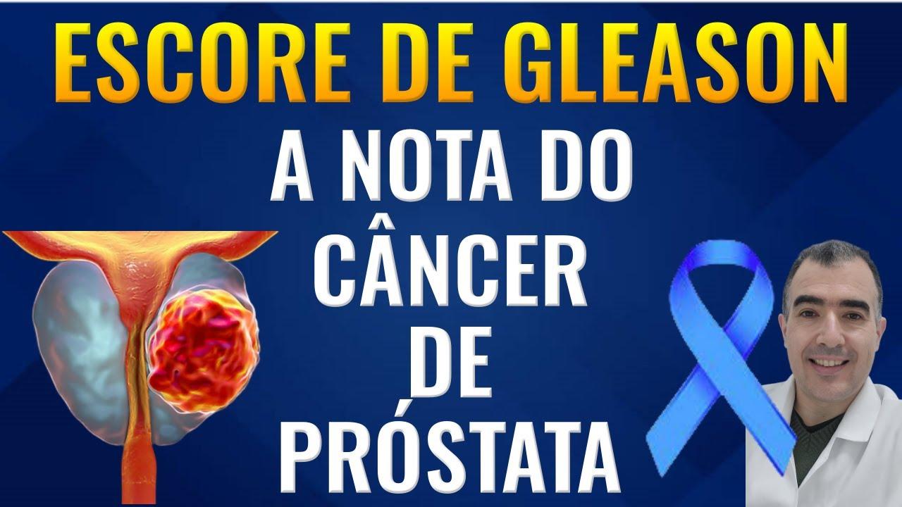 adenocarcinoma prostatico acinar gleason 3+3