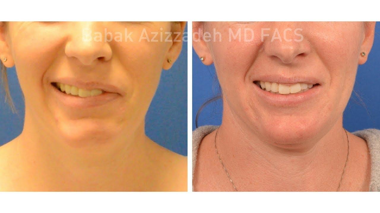 Facial paraylsis reconstructive florida