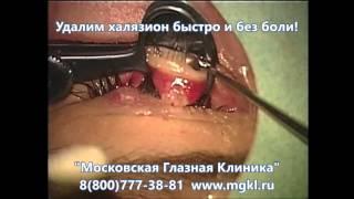 Операция по удалению халязиона на веке глаза(Видео операции по удалению халязиона.