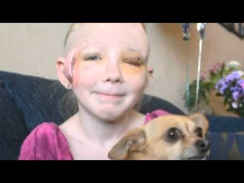 chihuahua-saves-girl-from-pit-bull-attack