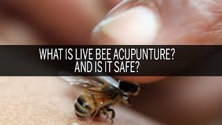 What is live bee acupuncture? And is it safe? thumbnail