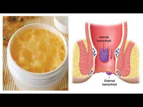 how to apply piles cream