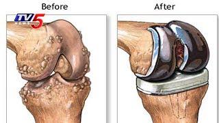 Latest Treatments For Knee Replacement Surgery | Srikara hospital | Health File | TV5 News