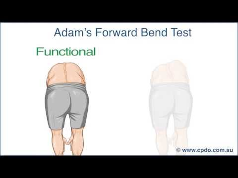 Adam's Forward Bend Test