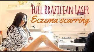 Repeat youtube video Brazilian Laser Hair Removal & Eczema Scar Reduction