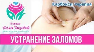 Процедура карбокситерапия в Москве. Борьба с целлюлитом. Карбокситерапия CO2 - как убрать морщины.