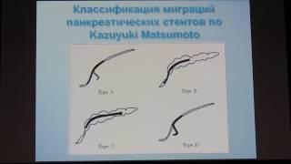 14 Васильев АВ Профилактика острого панкреатита после проведения эндоскопической ретроградной панкре