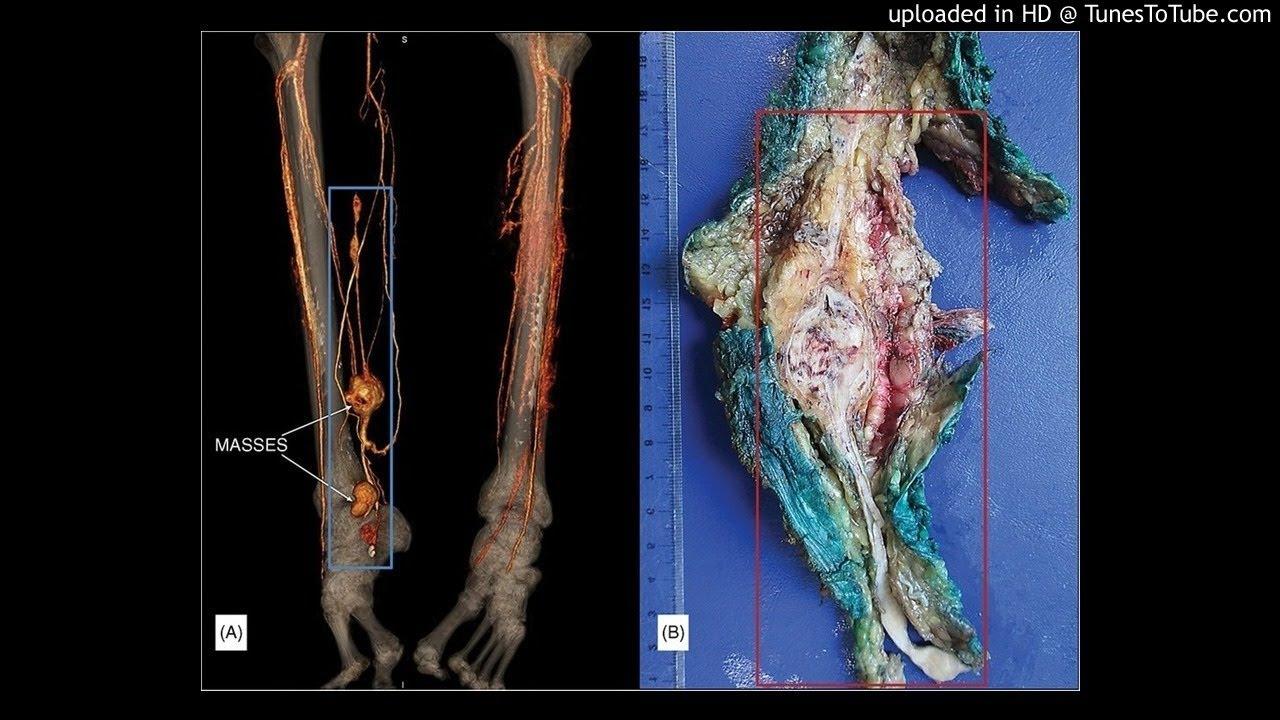 Leiomyosarcoma of the great saphenous vein (vena saphena magna) with ...