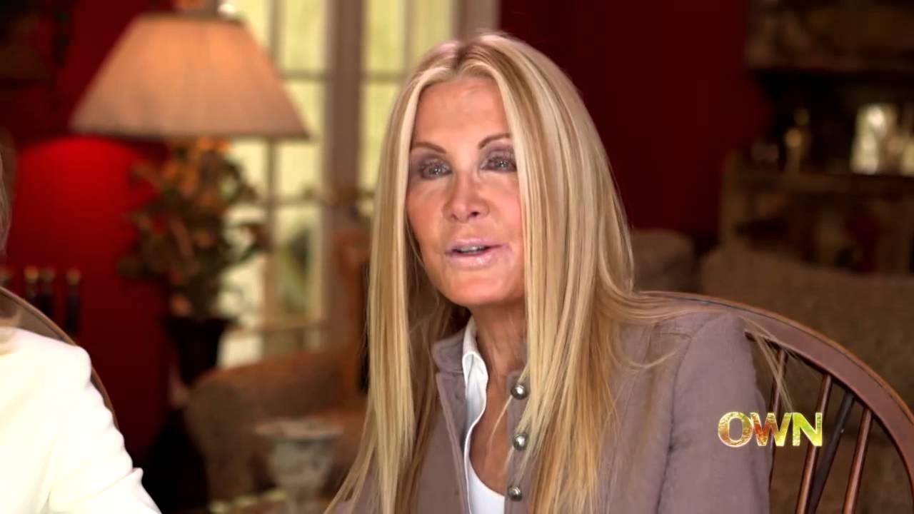 Joan Van Ark And Donna Mills Discuss Plastic Surgery