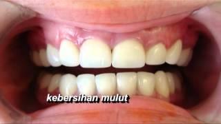 gigi warisan kita versi Bhg Pergigian Negeri Terengganu