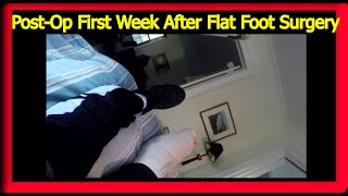 Flat Foot Surgery Week 1: Post-Op