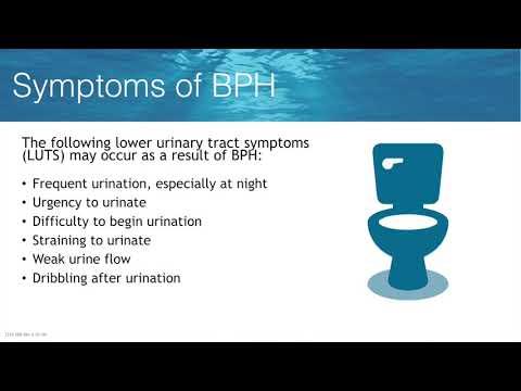 Chesapeake Urology Rezum Treatment For BPH With Dr. Anup Shah