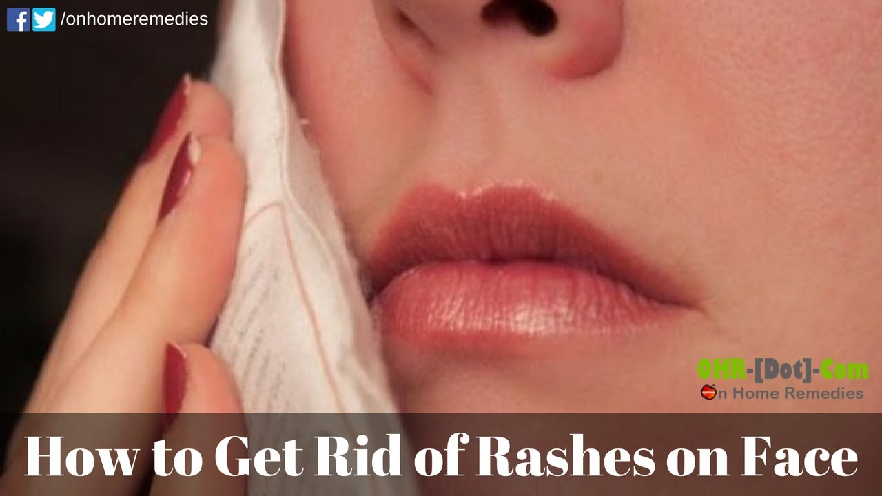 pics How to Get Rid of a Rash from Nair