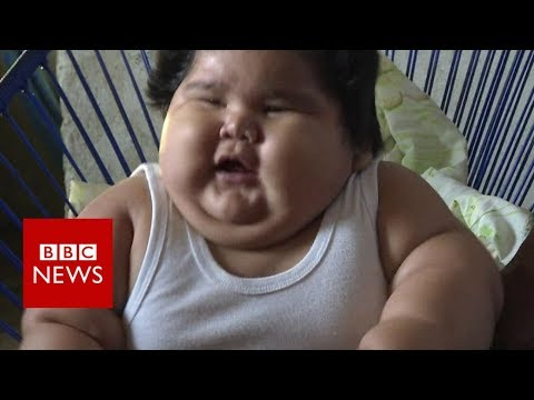 Why is this baby so overweight? – BBC News