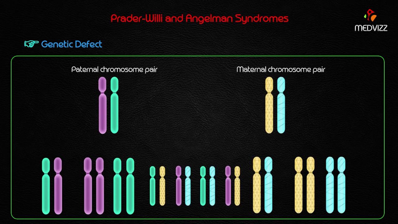 Prader willi and angel man syndromes usmle step 1 genetic diseases