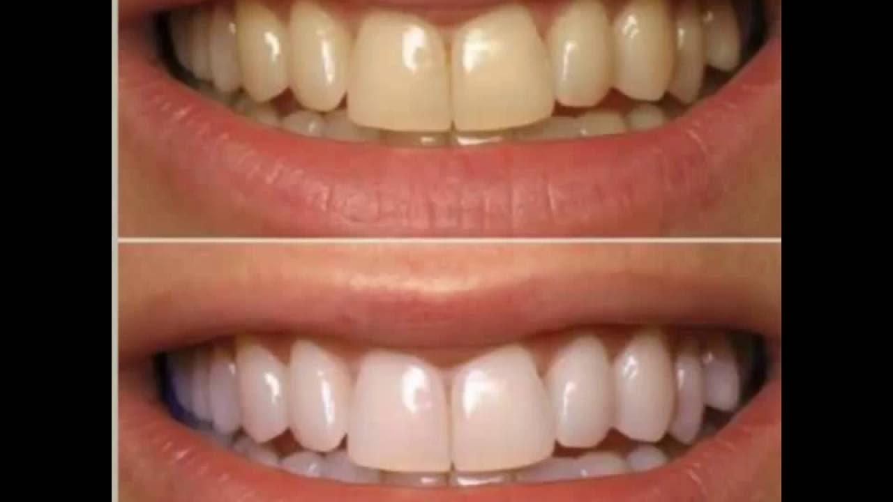 Como Clarear Os Dentes Em 1 Minuto Receita Caseira Com Apenas 2