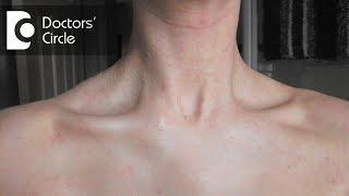 What causes a sudden red rash around the neck in women? - Dr. Aruna Prasad
