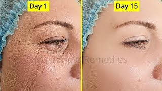 Japanese Secret To Look 10 Years Younger Than Your Age, Antiaging remedy, Remove Wrinkes & Acne screenshot 3