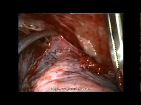Thoracoscopy VATS Decortication in stage 2 empyema, Delhi ...