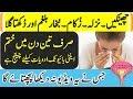 Flu treatment cheenkain nazla zukaam bukhaar balgham aur dukhkta gala best ilaj in hindi urdu mp3