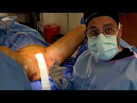 thigh-lift-|-north-texas-plastic-surgery-|-dallas,-texas