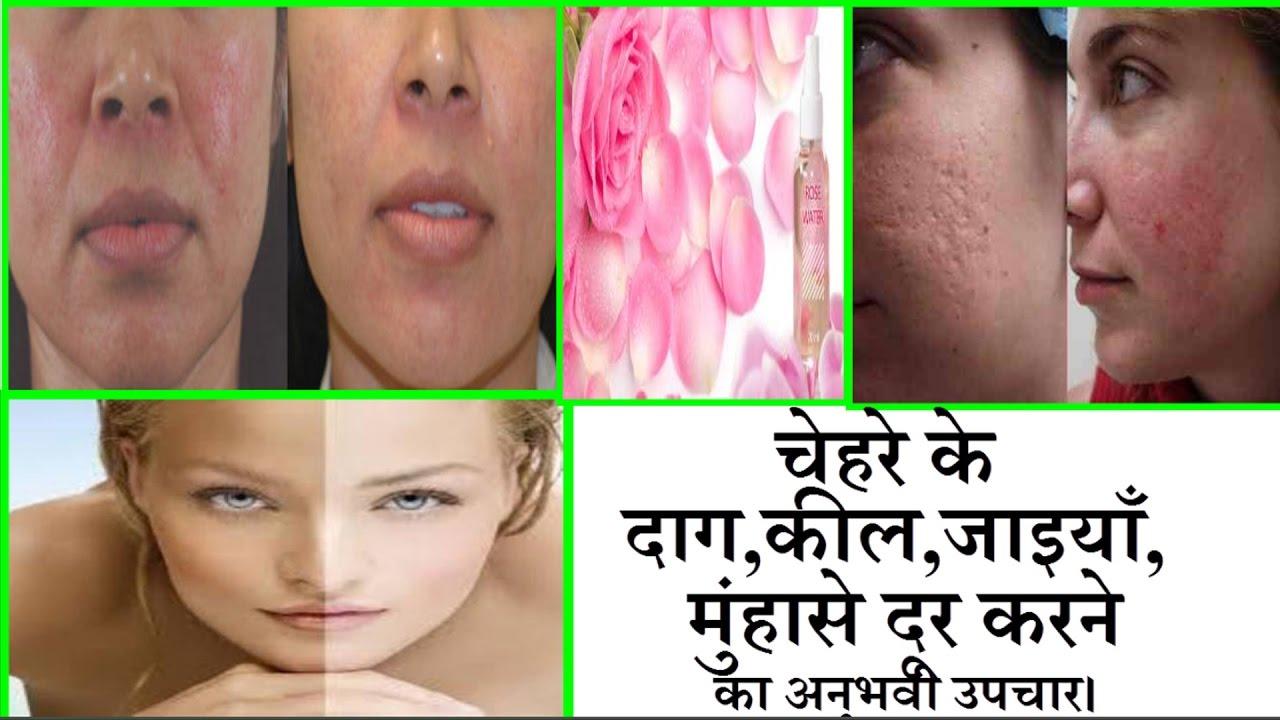 Image result for चेहरे के सारे पिंपल्स और दाग-धब्बे को पूरी तरह से साफ कर देगा यह आयुर्वेदिक नुस्खा